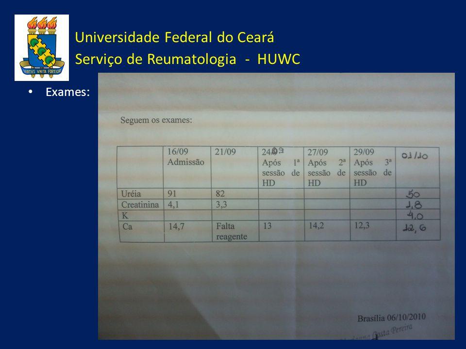 Universidade Federal do Ceará Serviço de Reumatologia - HUWC Exames: