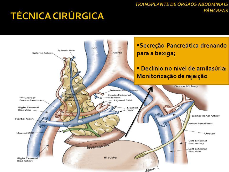 Drenagem exócrina  Drenagem vesical:  Consiste na ligação da borda do segmento duodenal do enxerto com a parede da bexiga do receptor;  Vantagem:Po