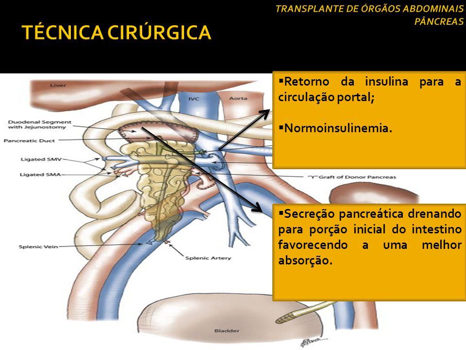 Drenagem Venosa  Drenagem Venosa Portal:  Realizada pela ligação da veia porta do enxerto pancreático à veia mesentérica superior do receptor;  Dre