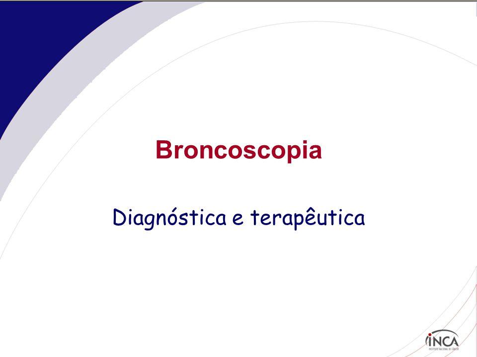 Broncoscopia Diagnóstica e terapêutica