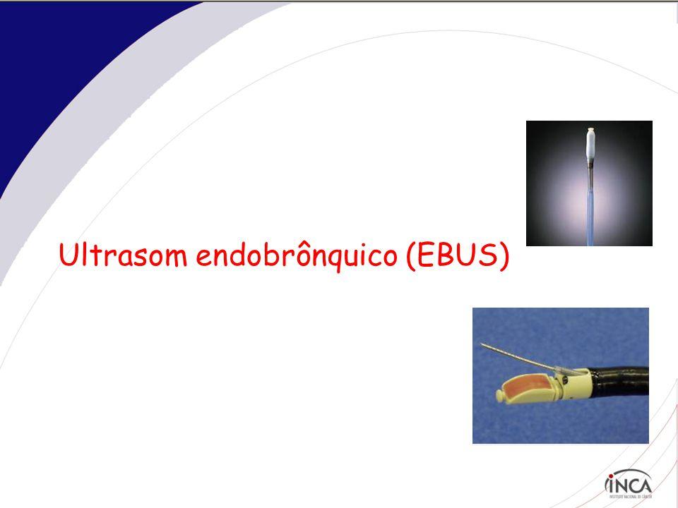 Ultrasom endobrônquico (EBUS)