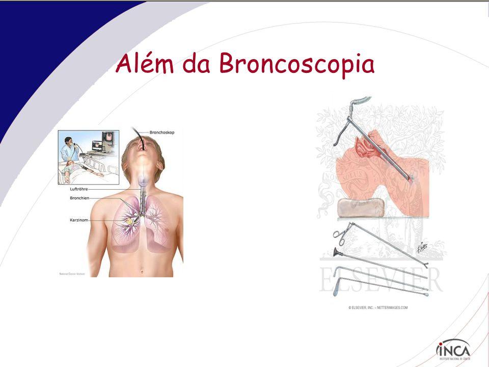 Pleuroscopia – toracoscopia rígida ou pleuroscópio semi-flexível  Toracoscópio Rígido – sala cirurgia  Pleuroscópio Semi-Flexível: pode ser realizado na sala de broncoscopia sob sedação cosnciente
