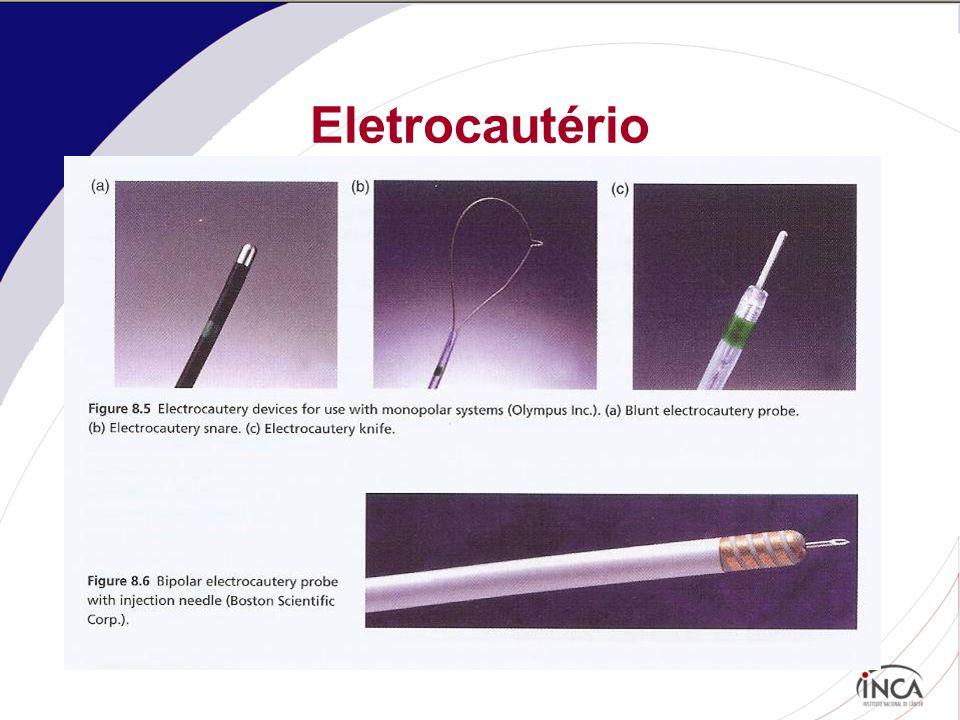 Eletrocautério