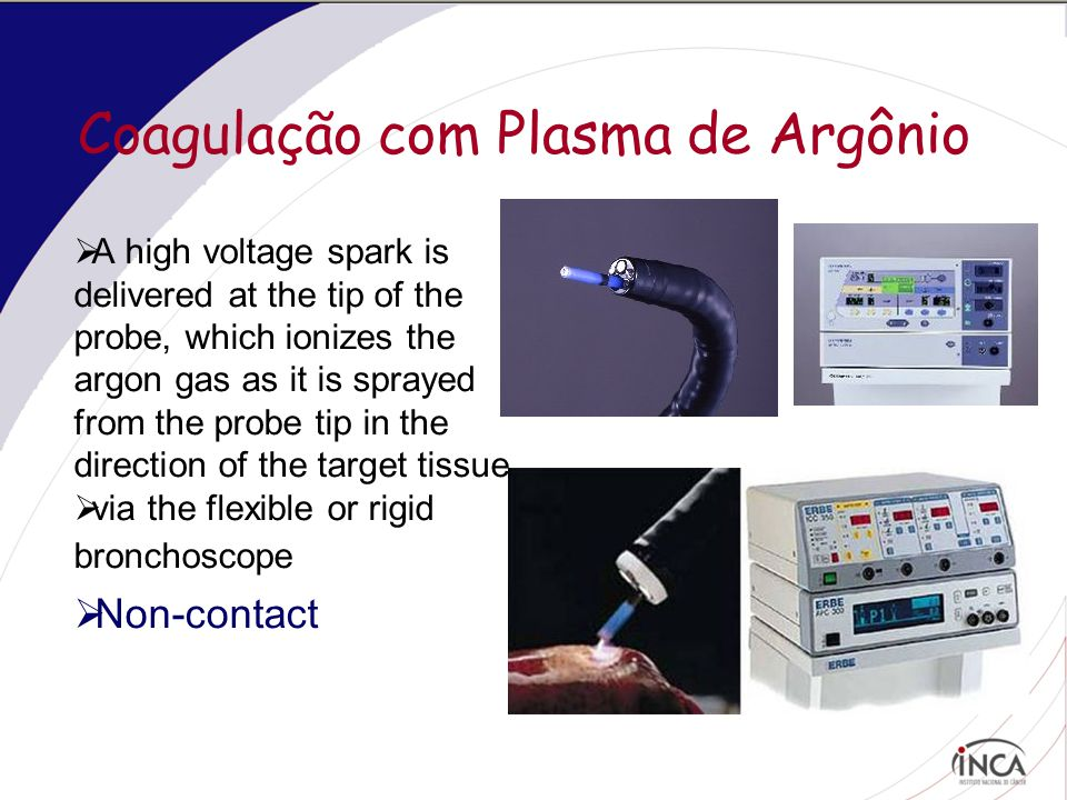 Coagulação com Plasma de Argônio  A high voltage spark is delivered at the tip of the probe, which ionizes the argon gas as it is sprayed from the pr