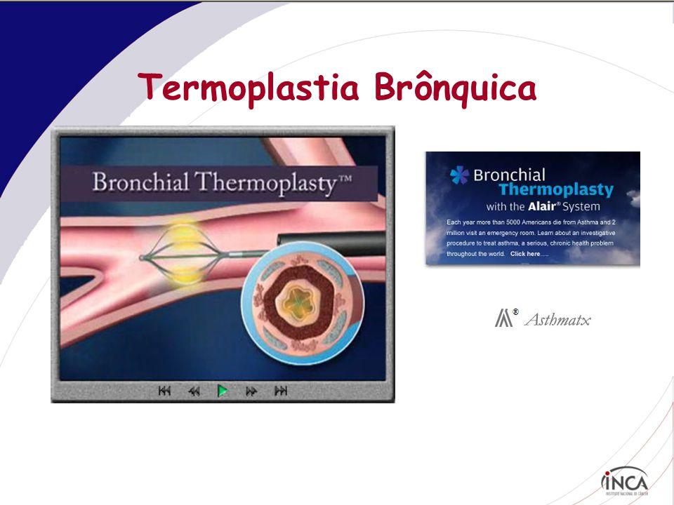 Termoplastia Brônquica