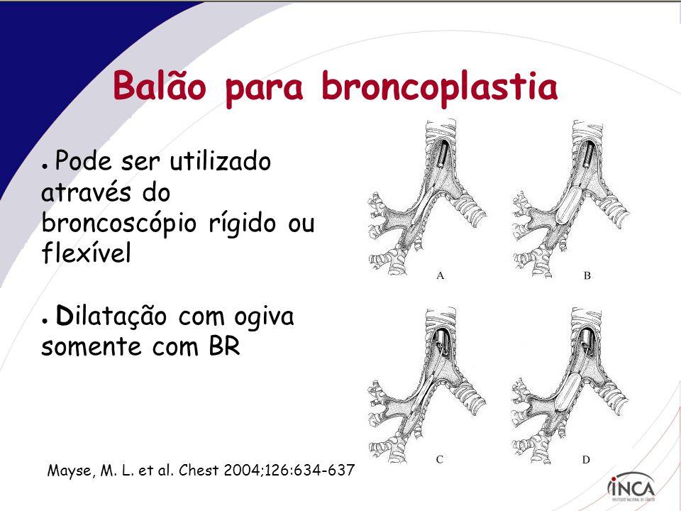 Balão para broncoplastia ● Pode ser utilizado através do broncoscópio rígido ou flexível ● Dilatação com ogiva somente com BR Mayse, M.