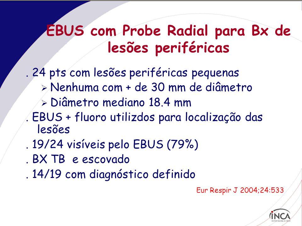 EBUS com Probe Radial para Bx de lesões periféricas.