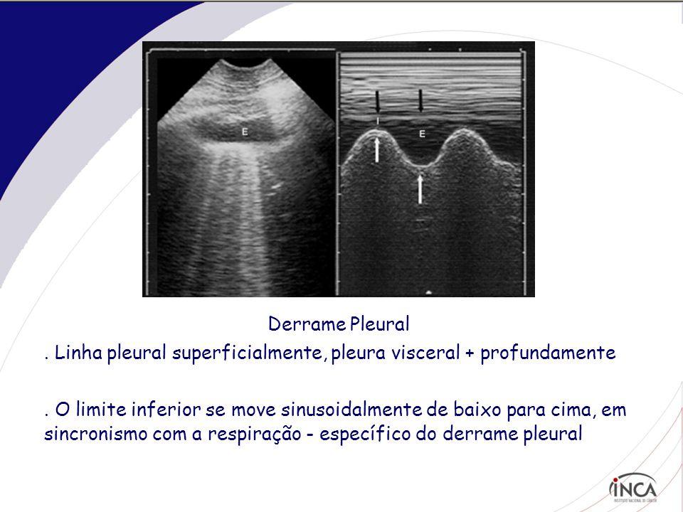 . Consolidação Alveolar : Opacidades hiperecóicas puntiformes – broncogramas aéreos
