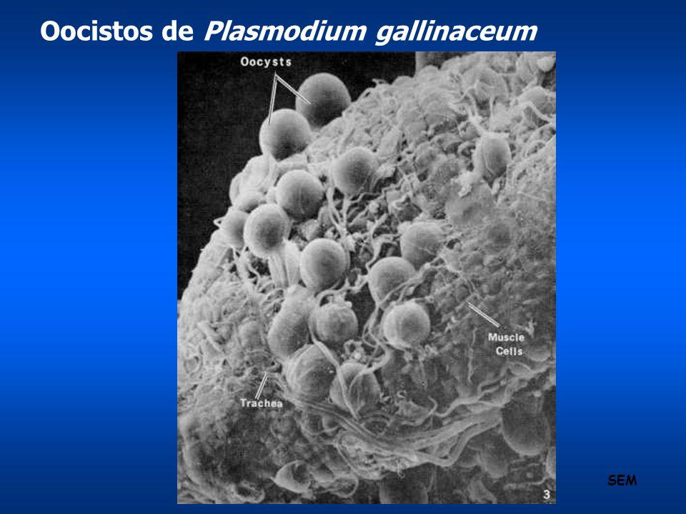 Oocistos de Plasmodium gallinaceum SEM