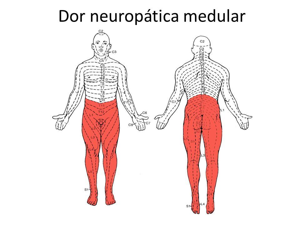 Dor neuropática medular