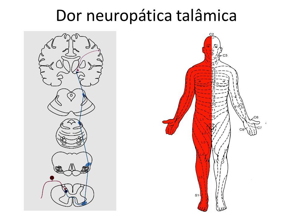 Dor neuropática talâmica