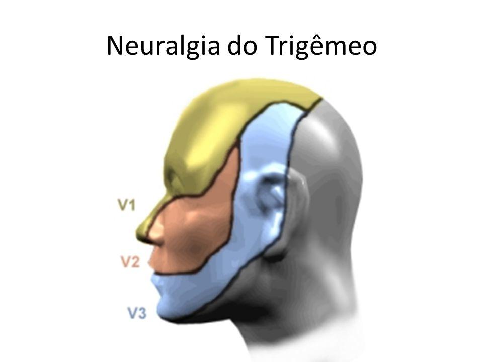 Neuralgia do Trigêmeo