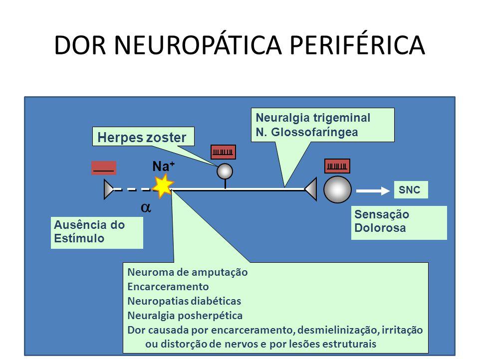 DOR NEUROPÁTICA PERIFÉRICA Ausência do Estímulo Sensação Dolorosa Na +  Neuroma de amputação Encarceramento Neuropatias diabéticas Neuralgia posherpé