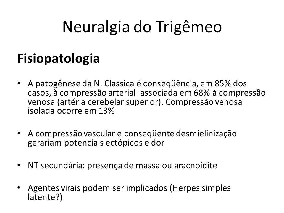 Neuralgia do Trigêmeo Fisiopatologia A patogênese da N. Clássica é conseqüência, em 85% dos casos, à compressão arterial associada em 68% à compressão