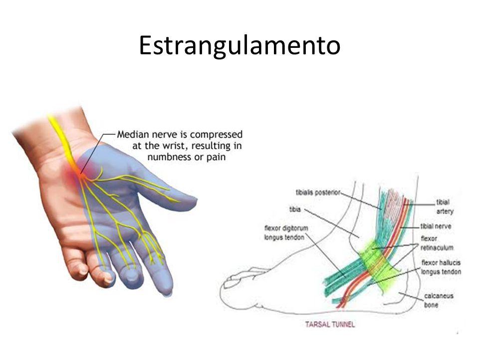 A IHS reconhece dois tipos de Neuralgia trigeminal: Clássica e Sintomática* 1.N.Clássica (características evolutivas e período refratário) Critérios diagnósticos: A.
