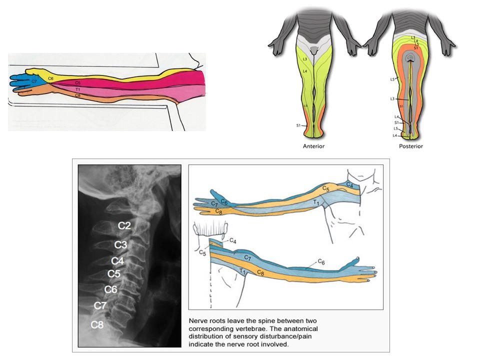Neuralgia do Trigêmeo Painful trigeminal neuropathy 2.N.