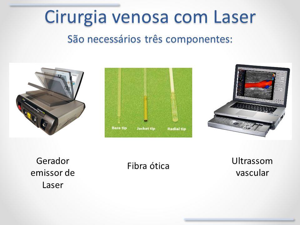 Cirurgia venosa com Laser São necessários três componentes: Gerador emissor de Laser Fibra ótica Ultrassom vascular