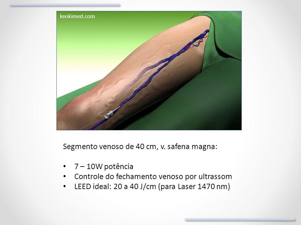 keokimed.com Segmento venoso de 40 cm, v. safena magna: 7 – 10W potência Controle do fechamento venoso por ultrassom LEED ideal: 20 a 40 J/cm (para La