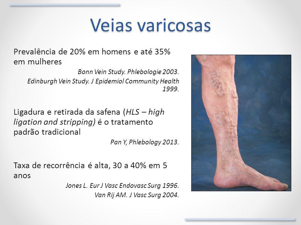 Veias varicosas Prevalência de 20% em homens e até 35% em mulheres Bonn Vein Study. Phlebologie 2003. Edinburgh Vein Study. J Epidemiol Community Heal