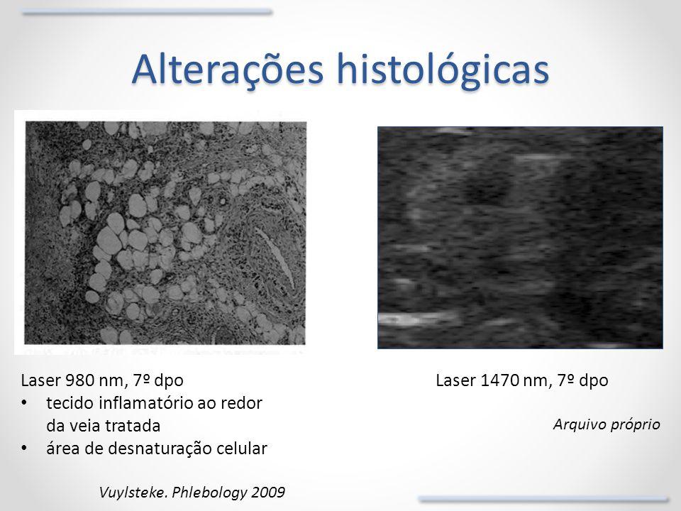 Alterações histológicas Laser 1470 nm, 7º dpo Arquivo próprio Laser 980 nm, 7º dpo tecido inflamatório ao redor da veia tratada área de desnaturação c