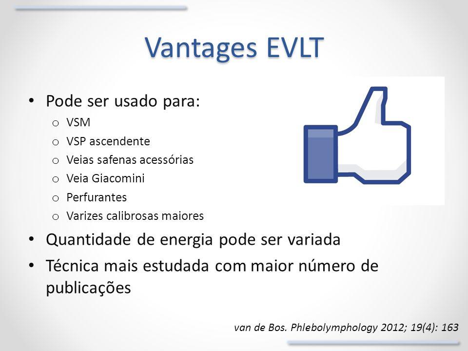 Vantages EVLT Pode ser usado para: o VSM o VSP ascendente o Veias safenas acessórias o Veia Giacomini o Perfurantes o Varizes calibrosas maiores Quant