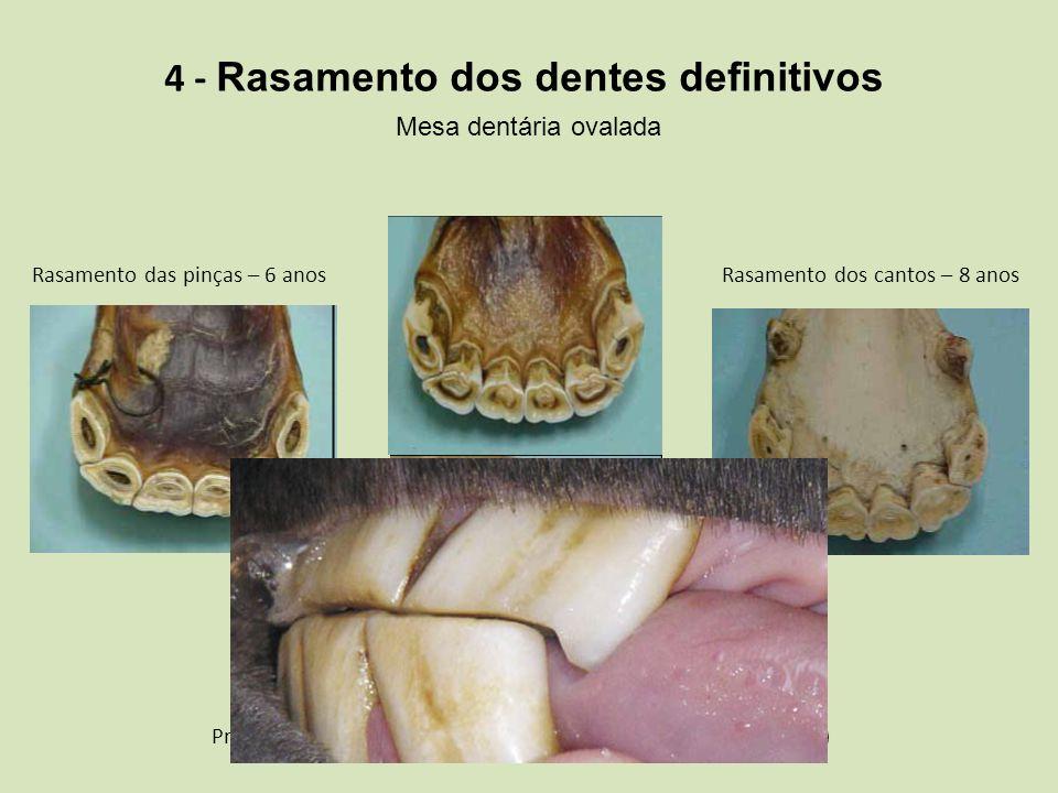 4 - Rasamento dos dentes definitivos Mesa dentária ovalada Rasamento das pinças – 6 anos Rasamento dos médios – 7 anos Presença da cauda de andorinha