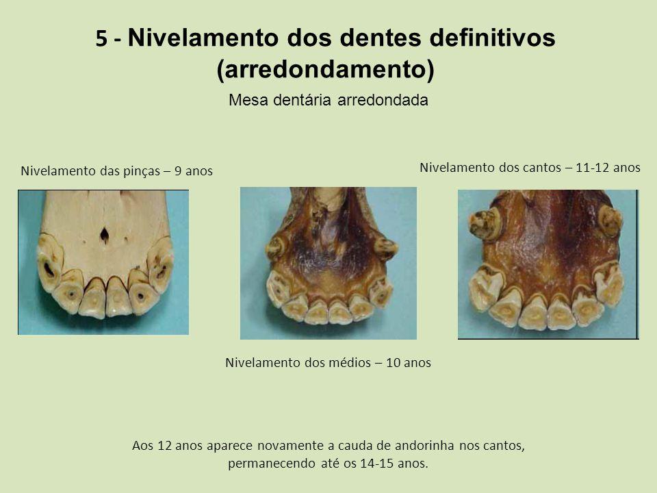 5 - Nivelamento dos dentes definitivos (arredondamento) Mesa dentária arredondada Nivelamento das pinças – 9 anos Nivelamento dos médios – 10 anos Ni