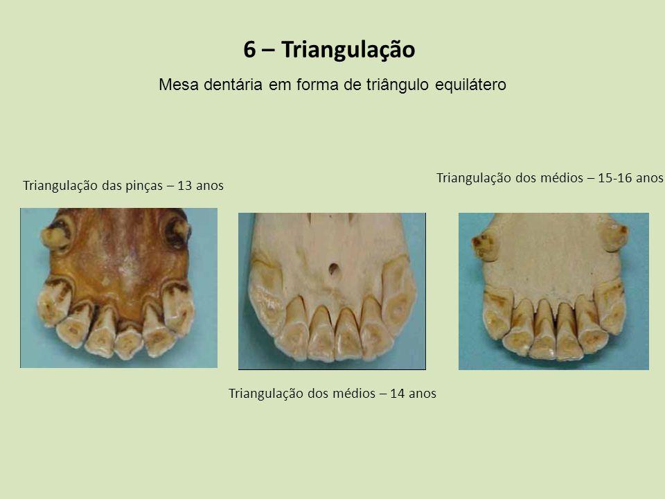 6 – Triangulação Mesa dentária em forma de triângulo equilátero Triangulação das pinças – 13 anos Triangulação dos médios – 14 anos Triangulação dos m