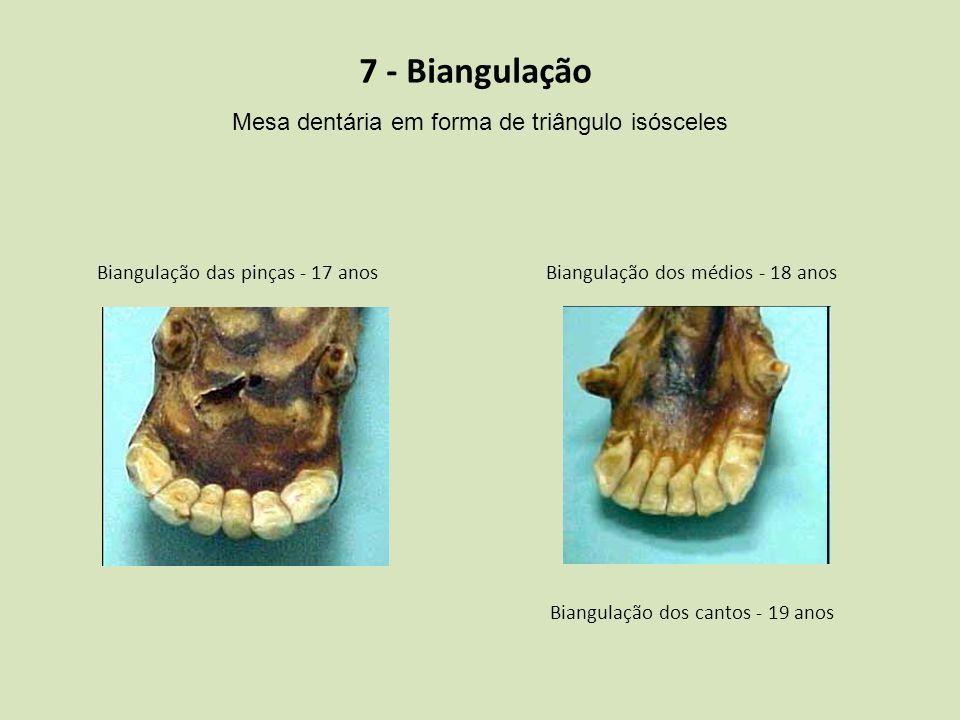 7 - Biangulação Mesa dentária em forma de triângulo isósceles Biangulação das pinças - 17 anosBiangulação dos médios - 18 anos Biangulação dos cantos