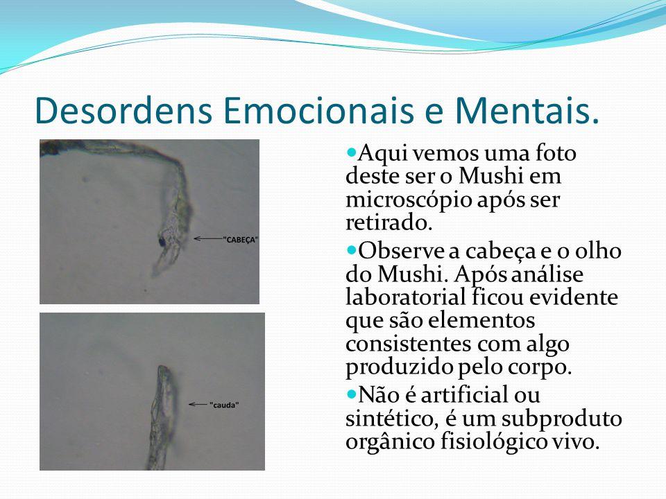 Desordens Emocionais e Mentais. Aqui vemos uma foto deste ser o Mushi em microscópio após ser retirado. Observe a cabeça e o olho do Mushi. Após análi