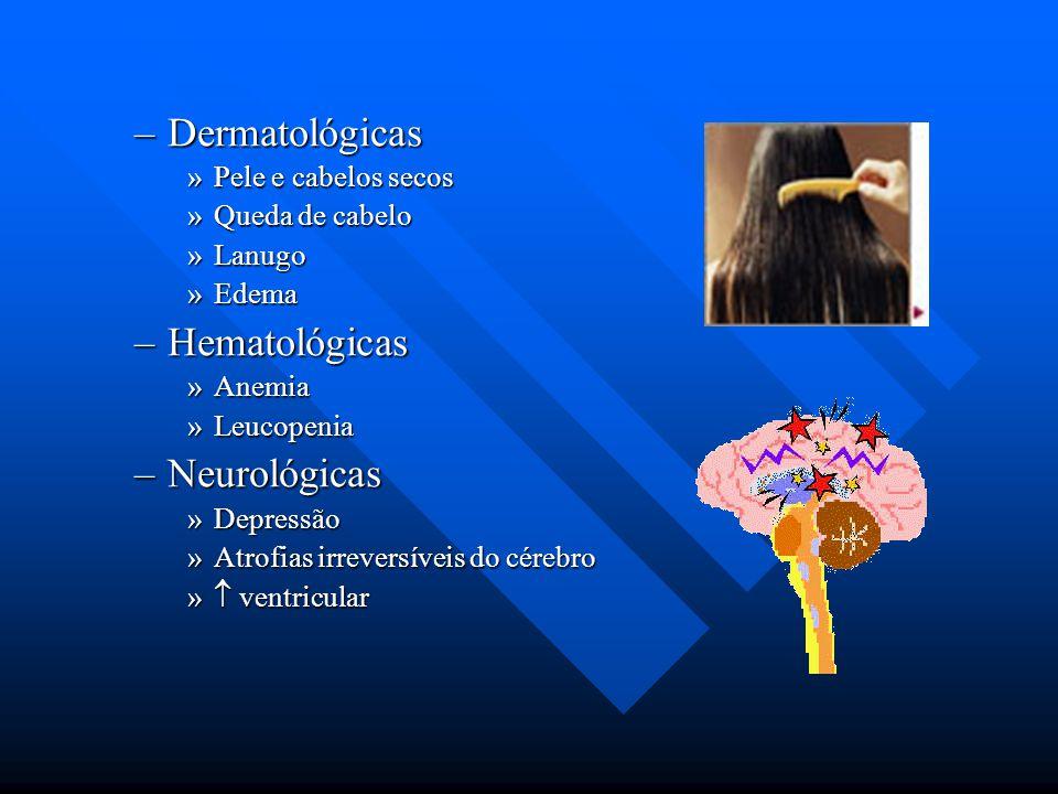 –Dermatológicas »Pele e cabelos secos »Queda de cabelo »Lanugo »Edema –Hematológicas »Anemia »Leucopenia –Neurológicas »Depressão »Atrofias irreversív