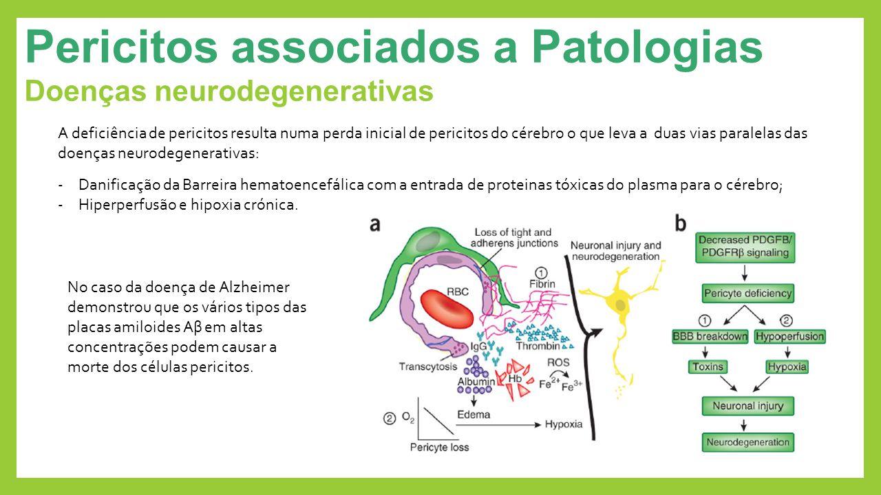 Pericitos associados a Patologias Doenças neurodegenerativas A deficiência de pericitos resulta numa perda inicial de pericitos do cérebro o que leva