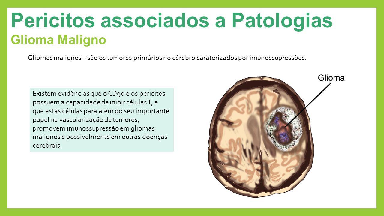 Pericitos associados a Patologias Glioma Maligno Gliomas malignos – são os tumores primários no cérebro caraterizados por imunossupressões. Existem ev