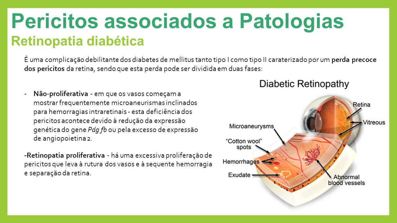Pericitos associados a Patologias Retinopatia diabética - Retinopatia proliferativa - há uma excessiva proliferação de pericitos que leva à rutura dos
