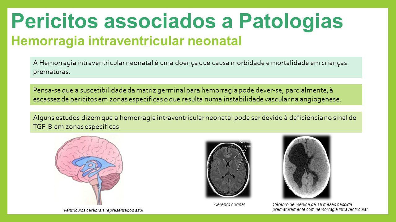 Pericitos associados a Patologias Hemorragia intraventricular neonatal Alguns estudos dizem que a hemorragia intraventricular neonatal pode ser devido