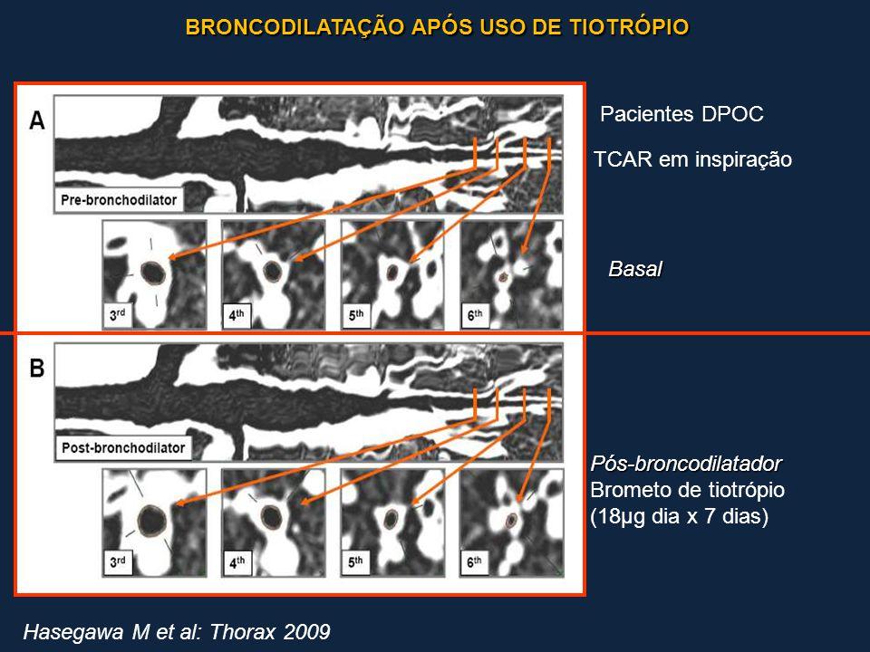 BRONCODILATAÇÃO APÓS USO DE TIOTRÓPIO BRONCODILATAÇÃO APÓS USO DE TIOTRÓPIO Hasegawa M et al: Thorax 2009 Basal Pós-broncodilatador Brometo de tiotróp