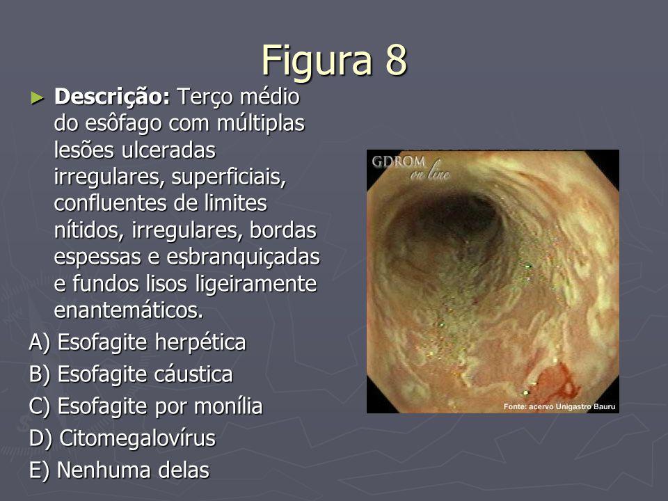 Figura 8 ► Descrição: Terço médio do esôfago com múltiplas lesões ulceradas irregulares, superficiais, confluentes de limites nítidos, irregulares, bo