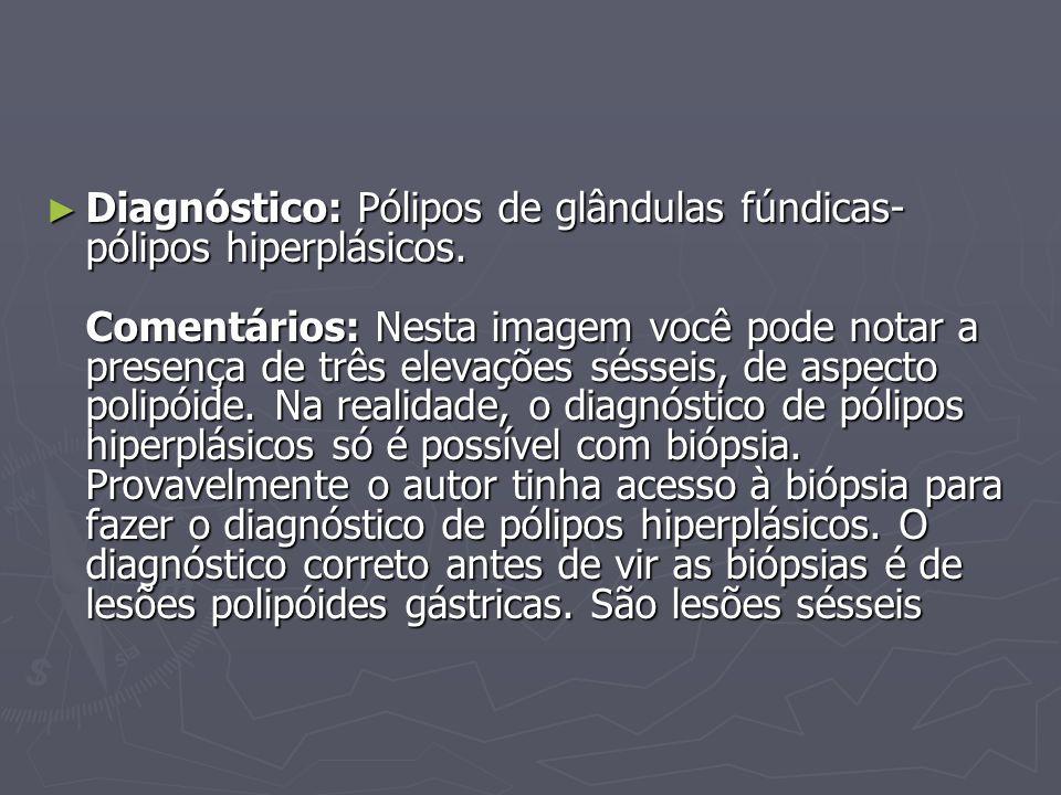 ► Diagnóstico: Pólipos de glândulas fúndicas- pólipos hiperplásicos. Comentários: Nesta imagem você pode notar a presença de três elevações sésseis, d