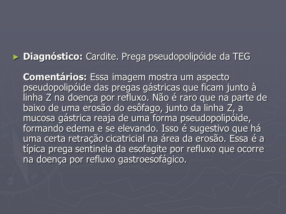 ► Diagnóstico: Cardite. Prega pseudopolipóide da TEG Comentários: Essa imagem mostra um aspecto pseudopolipóide das pregas gástricas que ficam junto à