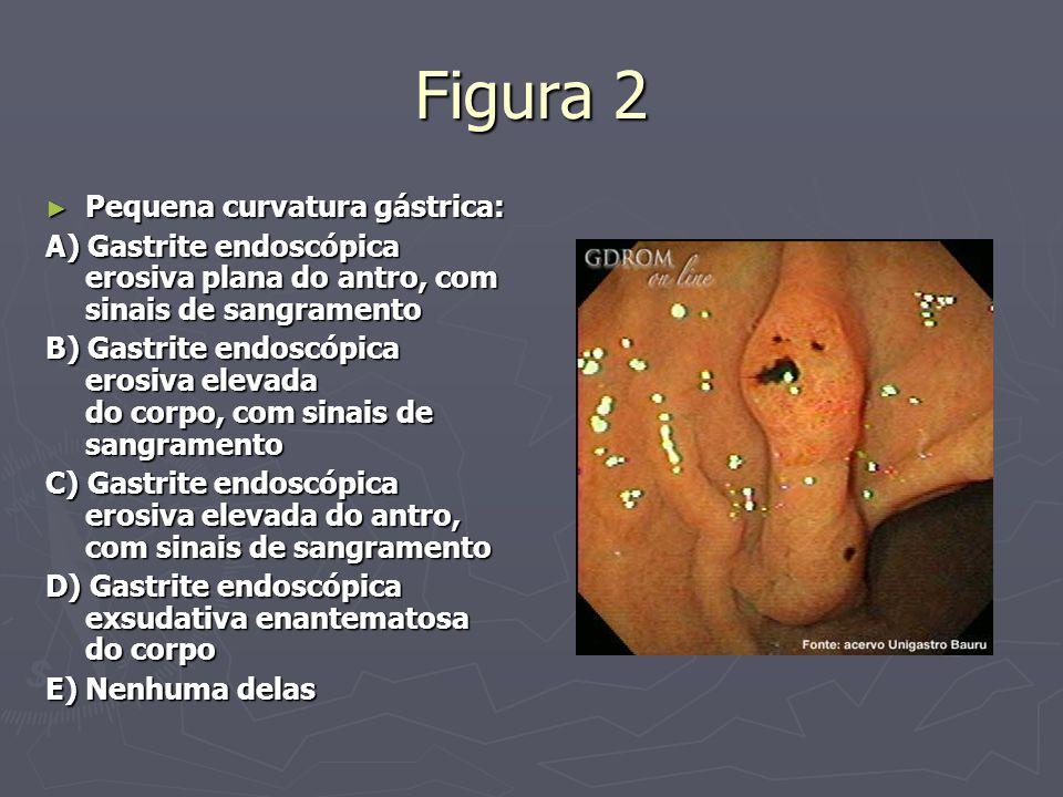 Figura 2 ► Pequena curvatura gástrica: A) Gastrite endoscópica erosiva plana do antro, com sinais de sangramento B) Gastrite endoscópica erosiva eleva
