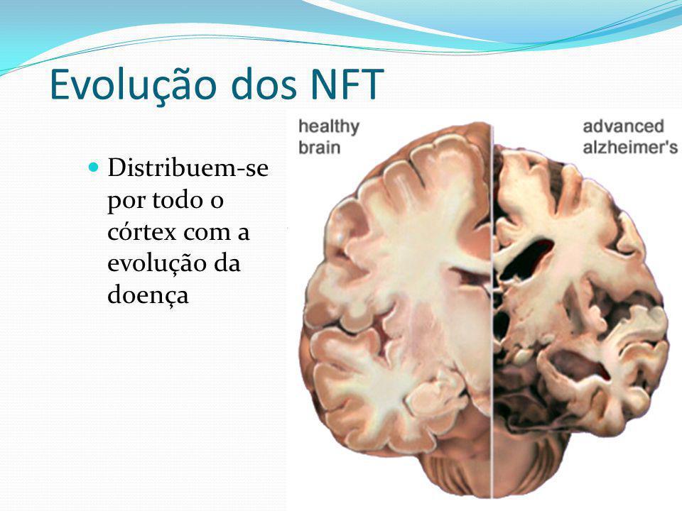 Evolução dos NFT Distribuem-se por todo o córtex com a evolução da doença