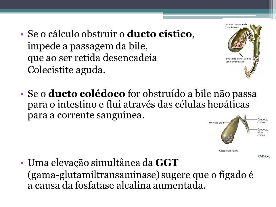 Se o cálculo obstruir o ducto cístico, impede a passagem da bile, que ao ser retida desencadeia Colecistite aguda. Se o ducto colédoco for obstruído a
