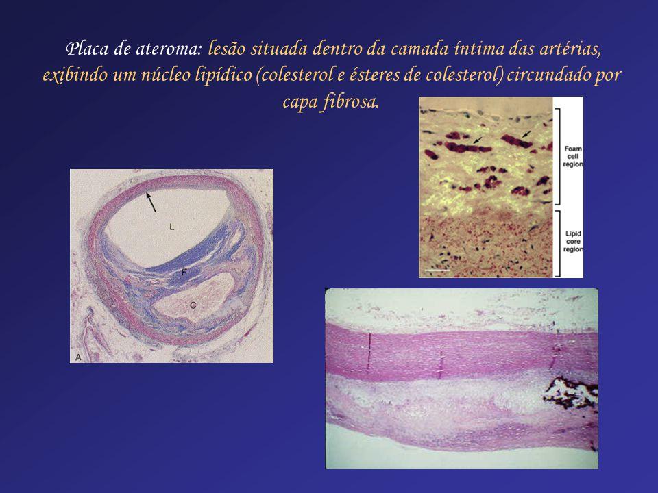 Placa de ateroma: lesão situada dentro da camada íntima das artérias, exibindo um núcleo lipídico (colesterol e ésteres de colesterol) circundado por