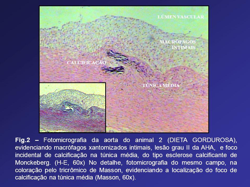 LÚMEN VASCULAR MACRÓFAGOS INTIMAIS TÚNICA MÉDIA CALCIFICAÇÃO Fig.2 – Fotomicrografia da aorta do animal 2 (DIETA GORDUROSA), evidenciando macrófagos x