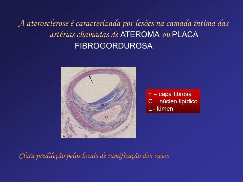 F – capa fibrosa C – núcleo lipídico L - lúmen A aterosclerose é caracterizada por lesões na camada íntima das artérias chamadas de ATEROMA ou PLACA F