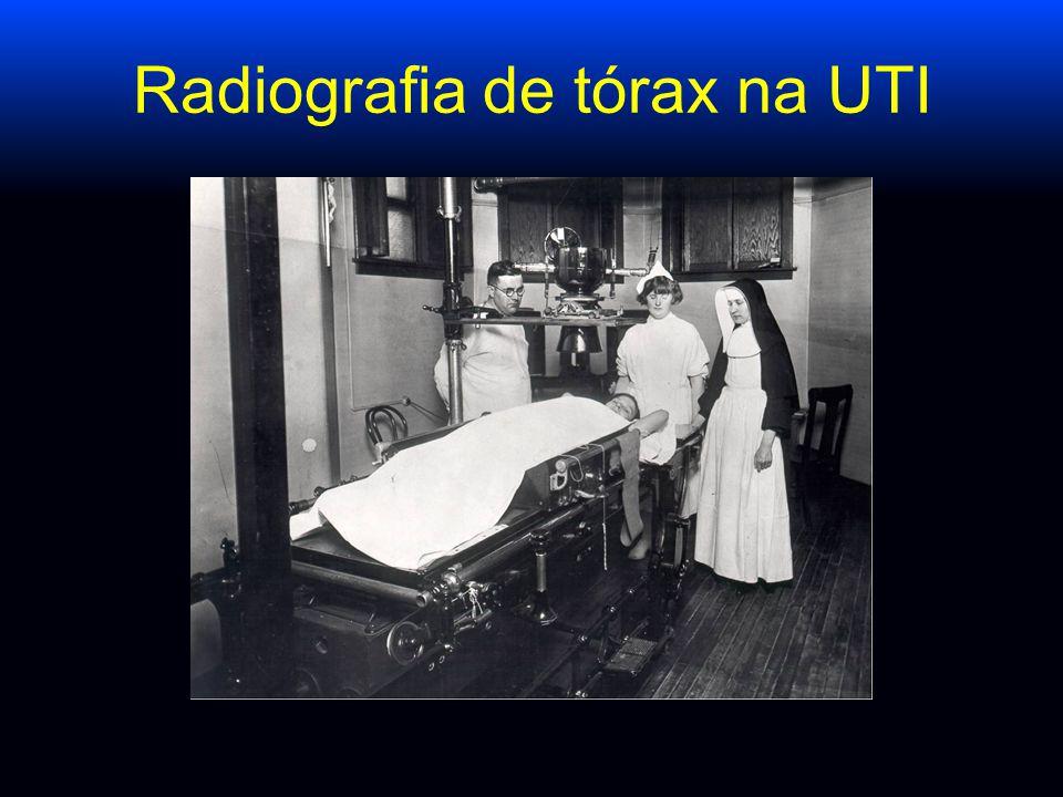 Sincronizando o RX de tórax com o Ventilador Langevin, AJRCCM 1999 Sincronizando o RX de tórax com o ventilador e fazendo o RX sempre no fim da inspiração, melhora a qualidade da radiografia