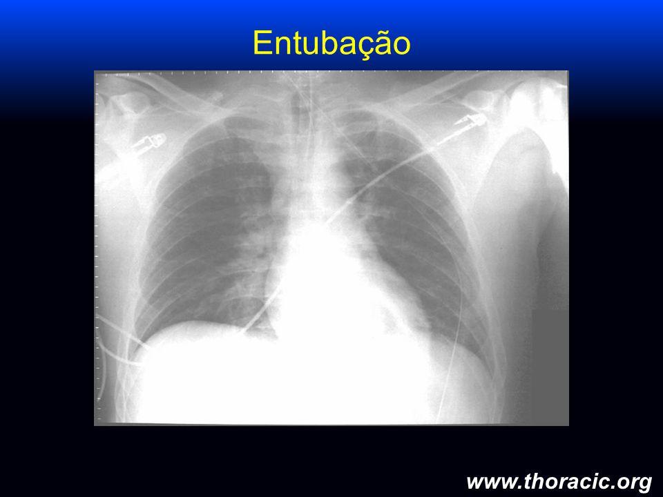 www.thoracic.org Entubação