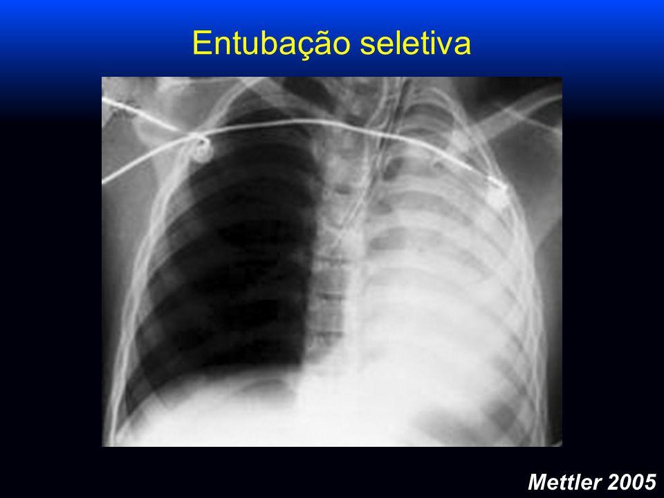 Mettler 2005 Entubação seletiva