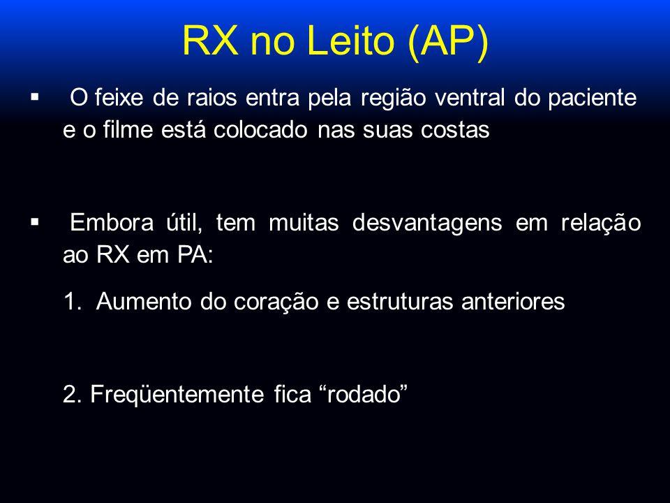 RX no Leito (AP)  O feixe de raios entra pela região ventral do paciente e o filme está colocado nas suas costas  Embora útil, tem muitas desvantage