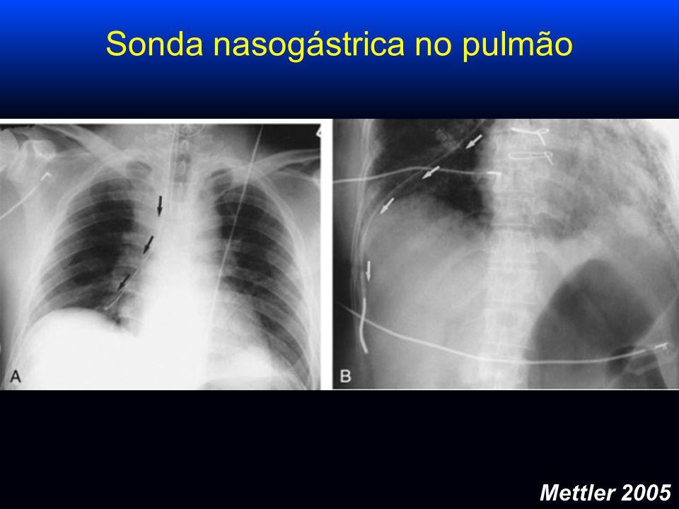 Mettler 2005 Sonda nasogástrica no pulmão